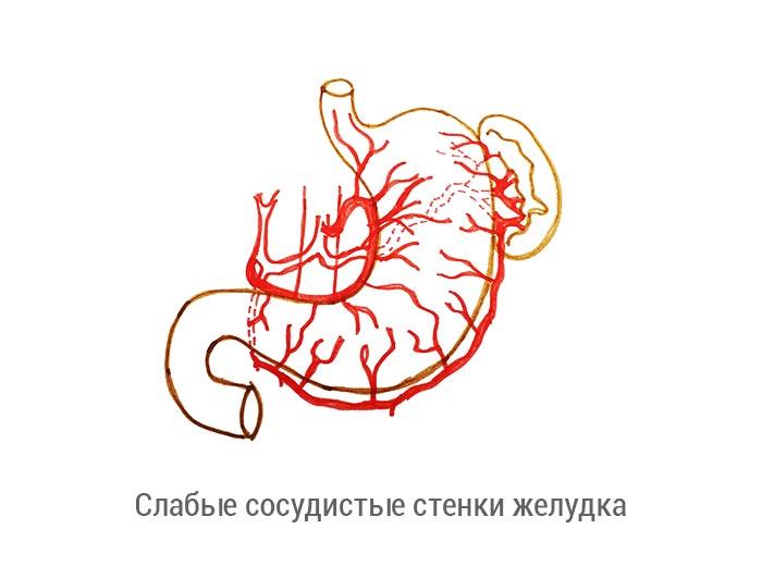 Сосудистые стенки желудка