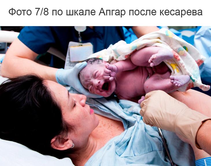 Что означает оценка для новорожденных 7/8 баллов по шкале Апгар при кесаревом сечении и естественных родах