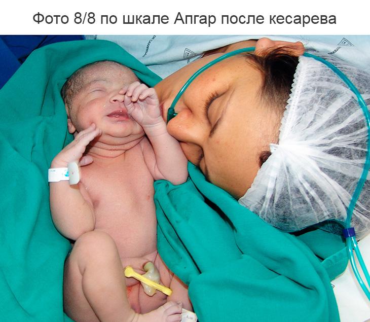 Что означает оценка для новорожденных 8 и 8 баллов по шкале Апгар при кесаревом сечении и естественных родах