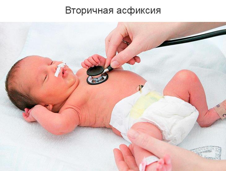 Оценка новорожденных по шкале Апгар легкой, средней и тяжелой степени асфиксии