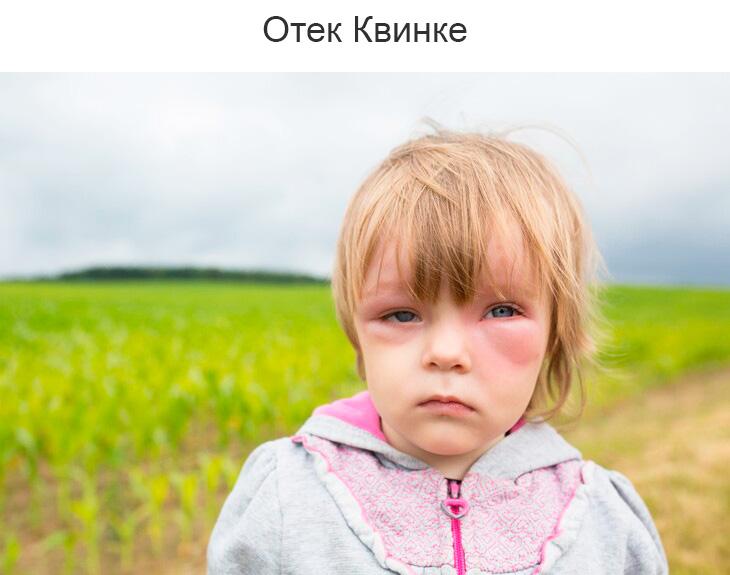 Как переносится ревакцинация АКДС у детей и взрослых: побочные эффекты и осложнения